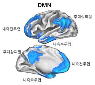 멍때리기의뇌.jpg