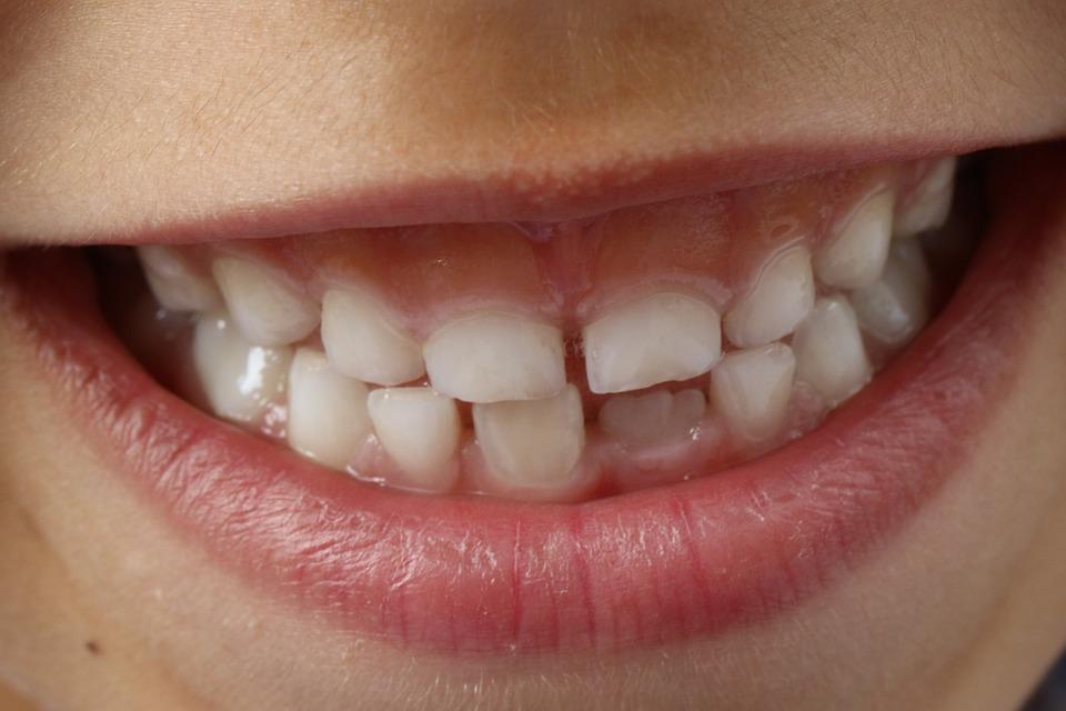 teeth-1743981_960_720.jpg