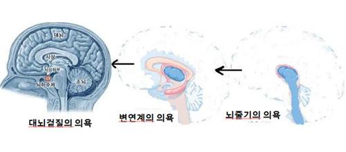 뇌1.jpg