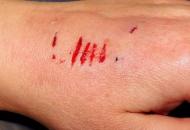 손톱에 긁힌 상처 소독법