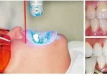 치아미백제, 치아·잇몸 손상 조심해야