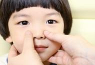 알레르기 비염에 좋은 코 관리법