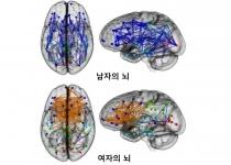 남자아이의 뇌 vs 여자아이의 뇌